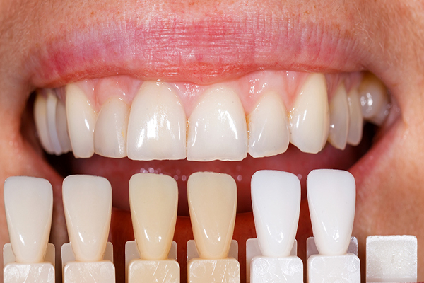 Dán răng sứ cho răng ê buốt