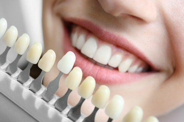 dán răng sứ Veneer