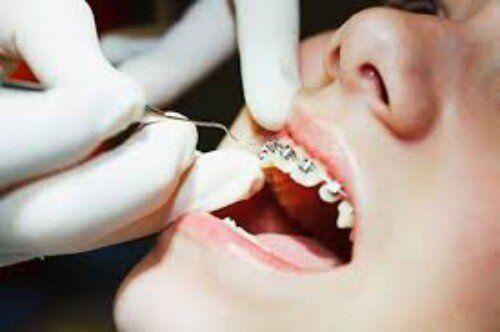 Đang bị sâu răng có niềng được không?