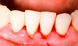 Cạo vôi răng bao lâu một lần và có hiệu quả không? 2