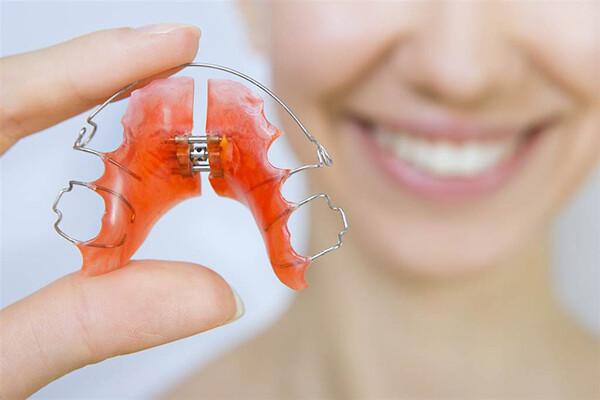 đeo hàm duy trì sau niềng răng