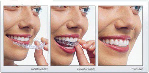Đeo máng nhai khắc phục tình trạng mòn mặt nhai