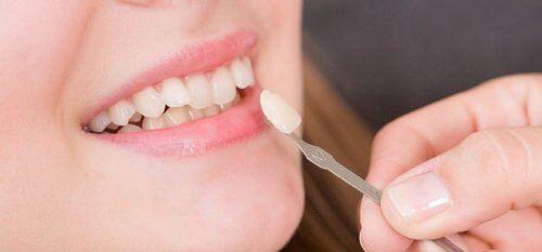 Địa chỉ bọc răng sứ Veneer giá rẻ ở đâu tại TP.HCM?