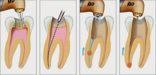 Điều trị tủy răng là gì ?