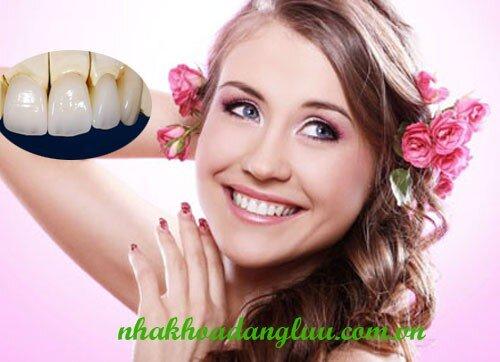 Dịch vụ bọc răng sứ thẩm mỹ tại trung tâm nha khoa