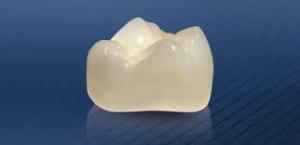 Quy trình bọc răng sứ như thế nào? 4