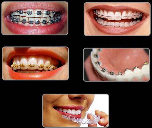 Những trường hợp không cần nhổ răng khi niềng
