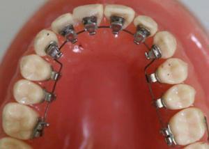 Các loại niềng răng thẩm mỹ hiện nay