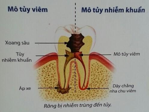 Vì sao răng chữa tủy lại gọi là răng chết?