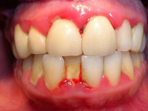 Làm sao để phát hiện ra bệnh viêm quanh chân răng ?