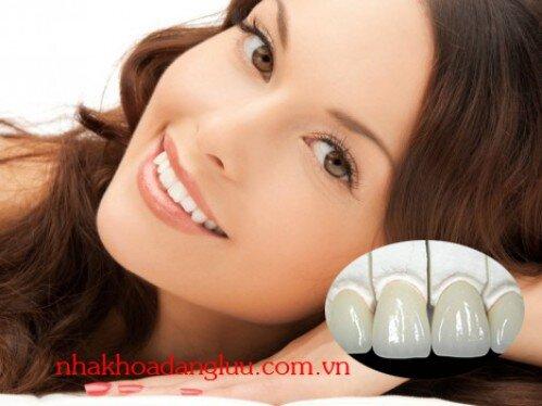 Độ bền phục hình răng sứ được bao lâu?