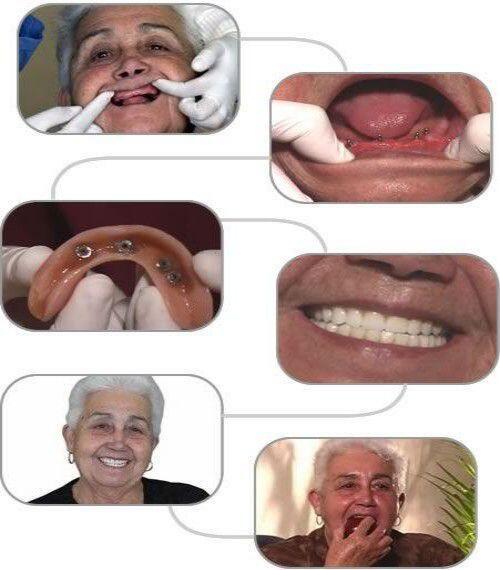 Răng Implant bị đào thải trồng lại có đau không ?