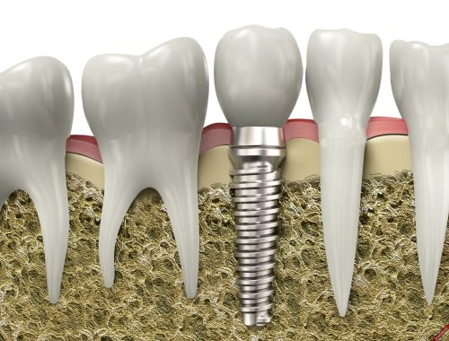 cắm ghép Implant California