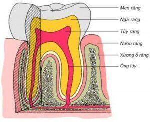 Ê Buốt Răng Là Gì