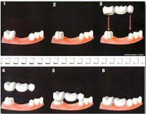 giải pháp làm cầu răng sứ