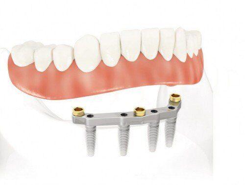 Ghép implant trong trường hợp mất răng hoàn toàn