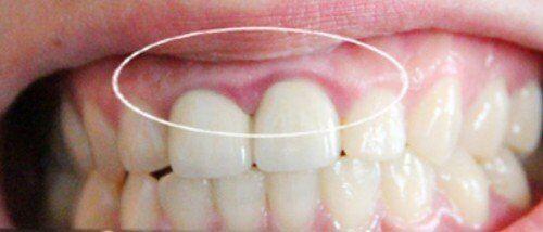 Ghép nướu răng