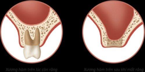 Ghép xương và nâng xoang hàm trong trồng răng implant