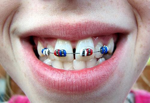 Chi phí niềng răng hô hết bao nhiêu tiền