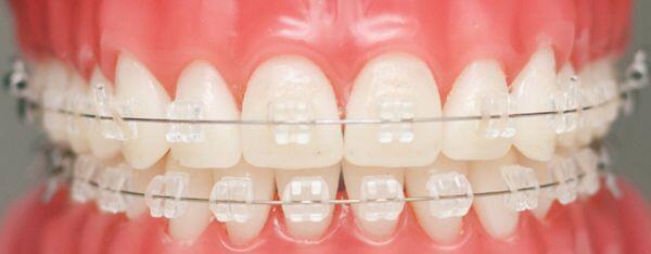 giá chi phí của niềng răng mắc cài tự đóng