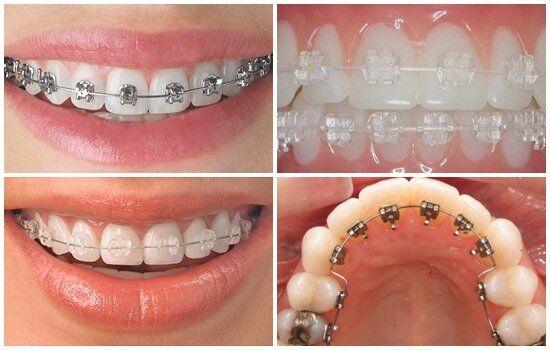 Niềng răng có giới hạn độ tuổi nào không ?