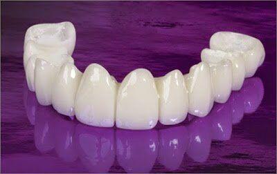 Bọc răng sứ nguyên hàm có tốt không?