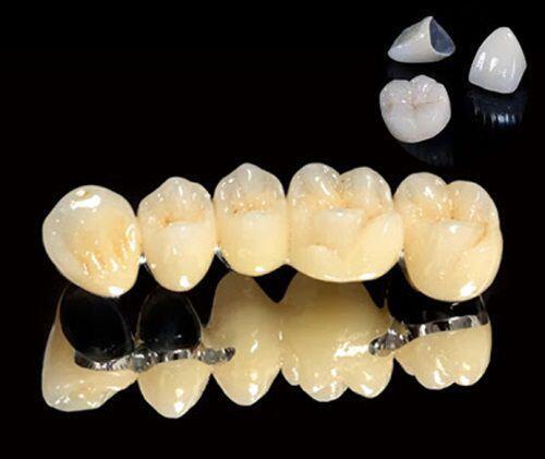 Giá răng sứ Titan bao nhiêu tiền ?