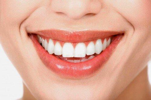 Niềng răng không mắc cài clear aligner -1