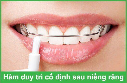 phải đeo khí cụ duy trì sau niềng răng trong bao lâu