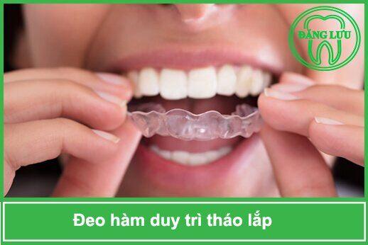 không đeo hàm duy trì sau niềng răng có được không