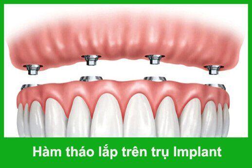hàm tháo lắp trên implant