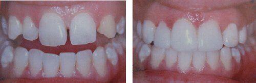 Hàn răng thưa bằng composite được bao lâu?