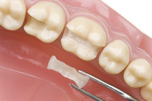Hàn răng thưa bằng composite được bao lâu ?