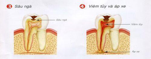 Tại sao nên nhổ răng sâu