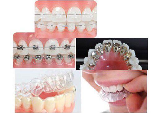 Điều trị hô mà không niềng răng được không ?