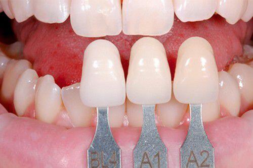 hiệu quả đạt được khibocj răng sứ