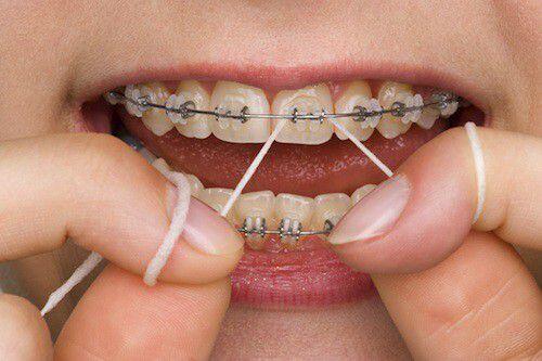 Hướng dẫn cách chăm sóc răng miệng sau khi niềng răng