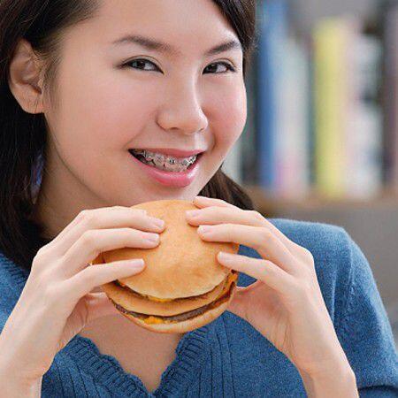 Chế độ ăn uống hợp lý khi niềng răng