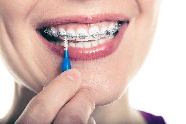hướng dẫn chăm sóc răng sau khi niềng răng