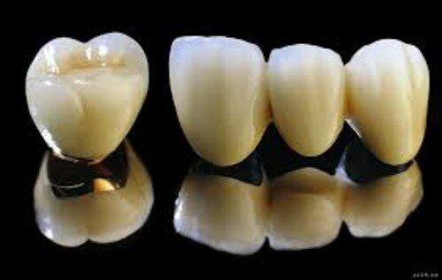 Hướng dẫn lựa chọn loại răng sứ phù hợp