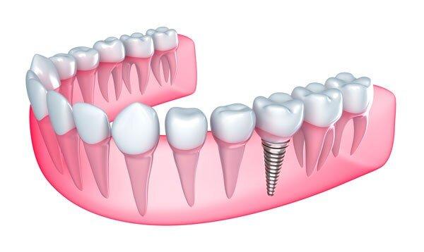 hút thuốc có ảnh hưởng đến răng implant không