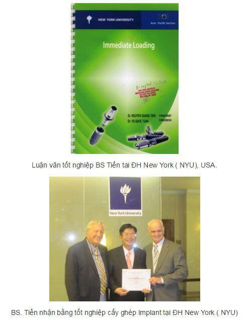 Implant BS Tien NYU, USA