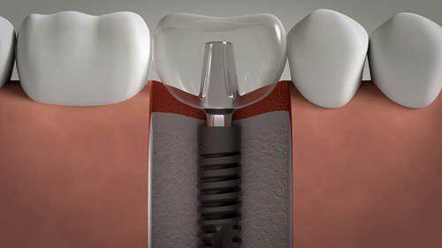 Image result for Tìm hiểu rõ hơn về răng Implant