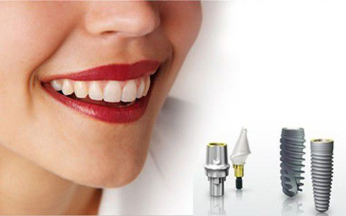Trồng răng Implant mất bao lâu? 2