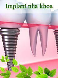 Implant nha khoa Đăng Lưu