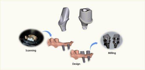 Implant osstem
