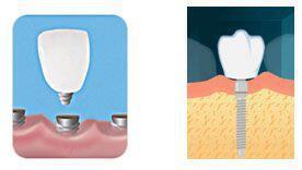 Implant Sử Dụng Được Bao Lâu?