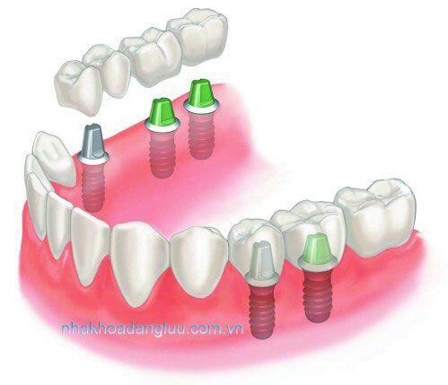 Sự khác biệt giữa trồng răng sứ và cấy ghép răng implant