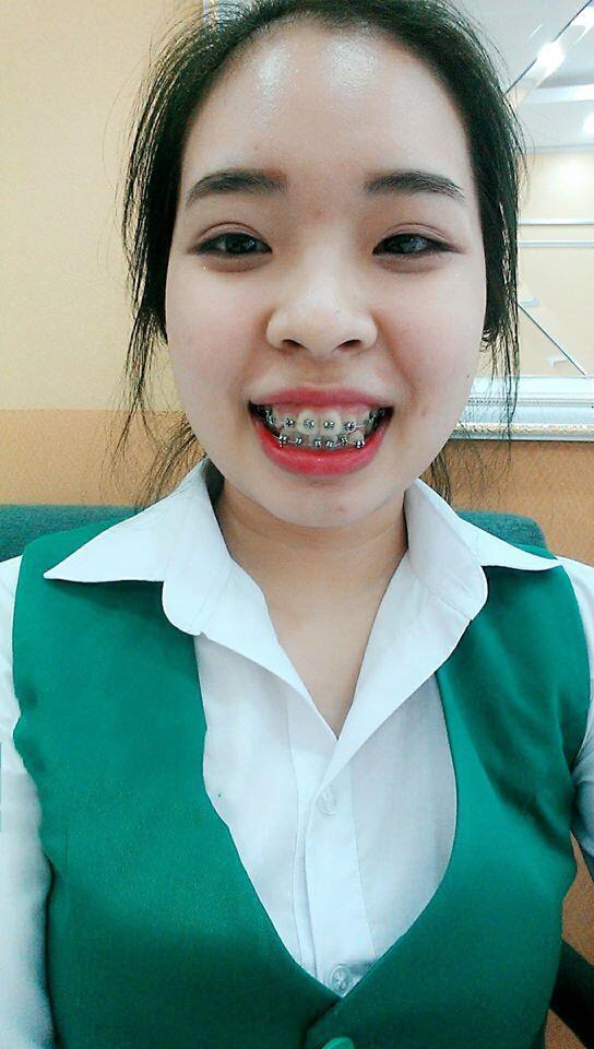 kh-nieng-rang-4-3