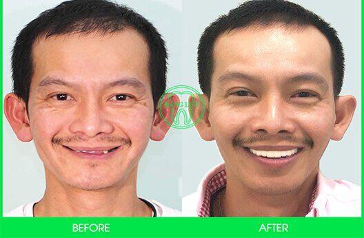 khách hàng làm Implant
